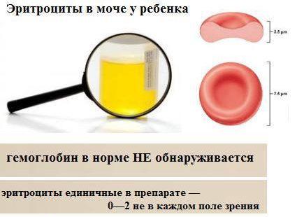 Норма эритроцитов в моче у ребенка