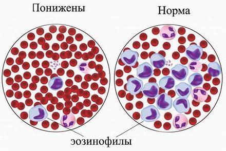 Норма и понижение эозинофилов в крови