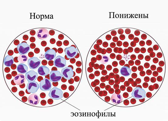 Норма и пониженные эозинофилы в крови