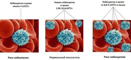 Норма лейкоцитов у взрослого мужчины и ее отклонения
