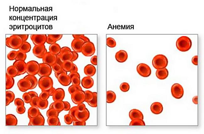 Нормальная концентрация эритроцитов и анемия