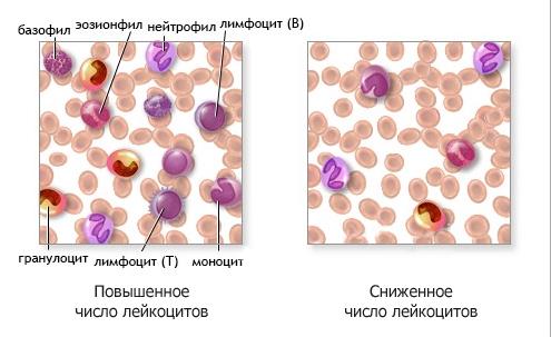 Снижение лейкоцитов в крови