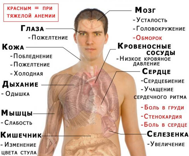 Симптомы низкого гемоглобина у мужчин