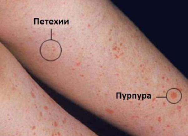 Точечные высыпания на коже