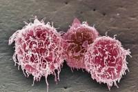 Пониженные лимфоциты в крови