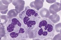 Повышение сегментоядерных нейтрофилов в крови