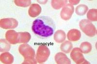 Снижение моноцитов в крови